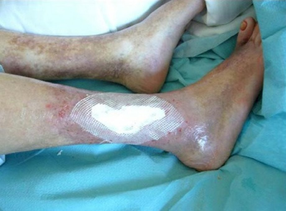 Application of Suprathel on Wounds