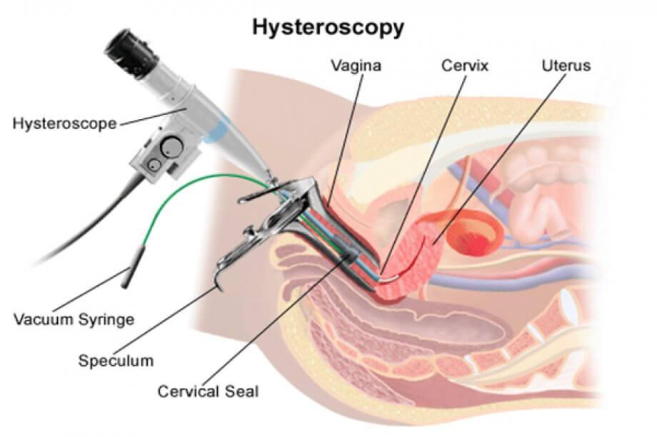 Histereskopi