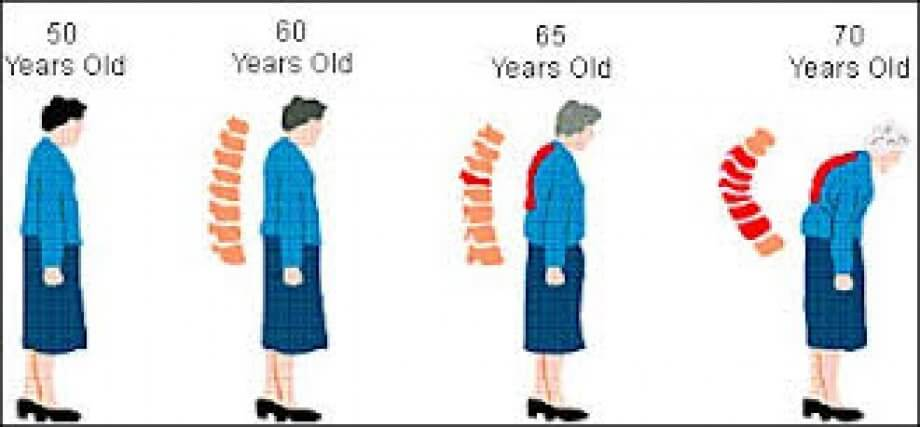 Menopoz Sonrası Kemik Erimesi