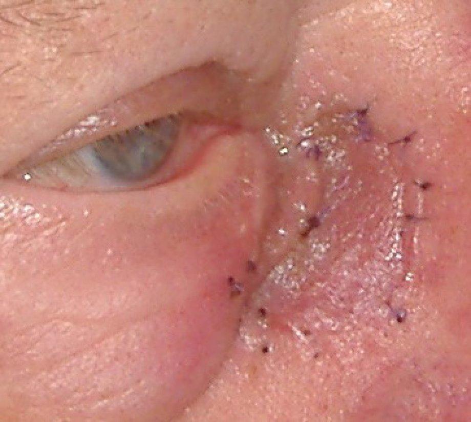 Göz çevresi cilt ve konjonktiva biyopsisi, trikiazis için radyofrekans cerrahisi