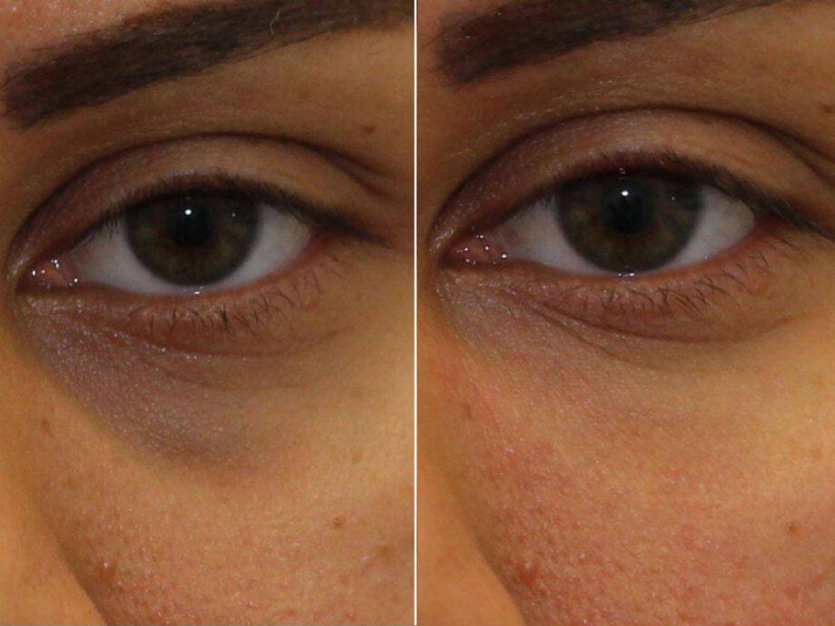 Cerrahisiz göz çevresi gençleştirme işlemleri