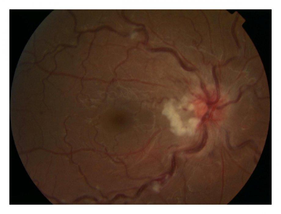 Optik Sinir Hastalıkları