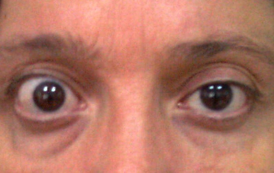 Göz Kapaklarının Çok Açık Olması (Kapak Retraksiyonu)