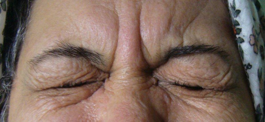 Göz Kapaklarının İstemsiz Sıkılması (Blefarospazm)
