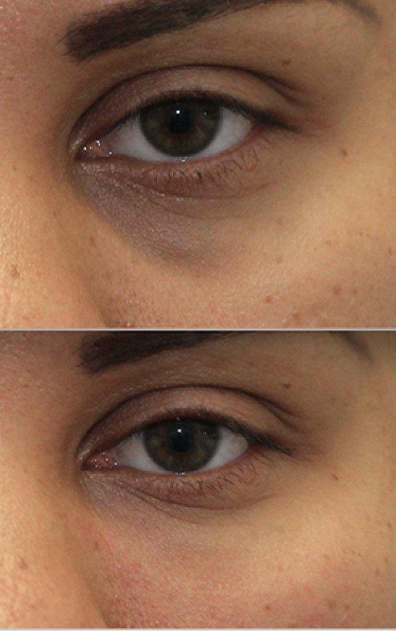 Göz Çevresinde Cerrahisiz Gençleştirme