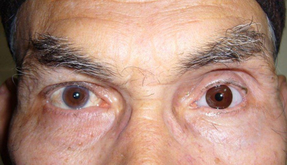 Göz Küresi Yokluğunda Göz Protezleri
