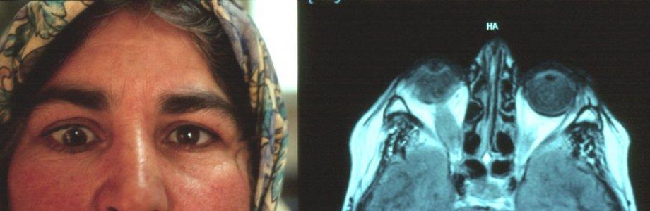 Tiroid Göz Hastalığı Hakkında