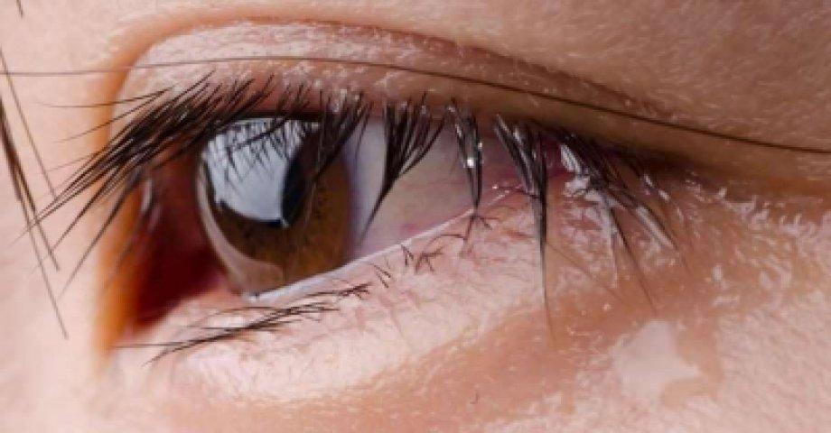 Göz Sulanması