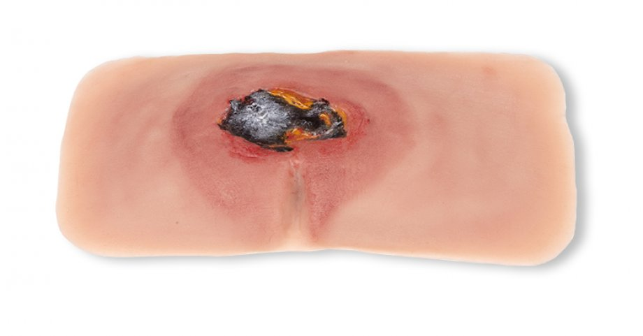 Wound moulage sacral decubitus, untreated