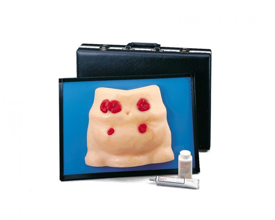 Ostomy Care Model