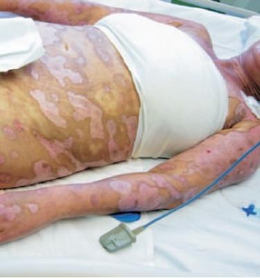 Epidermolysis Bullosa Tedavisinde Suprathel Kullanımı