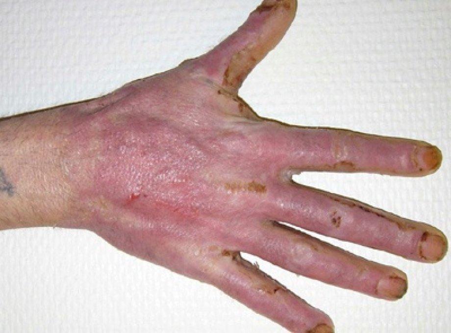 Application of Suprathel on Burns